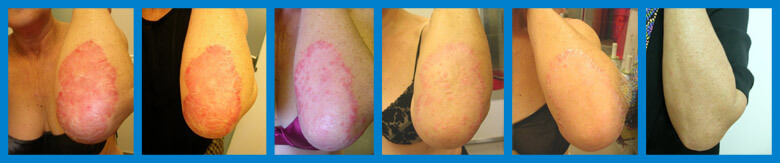 Psoriasis treatment by cryotherapy